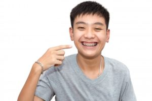 boy in gray t-shirt smiling and pointing to his braces in Nashua