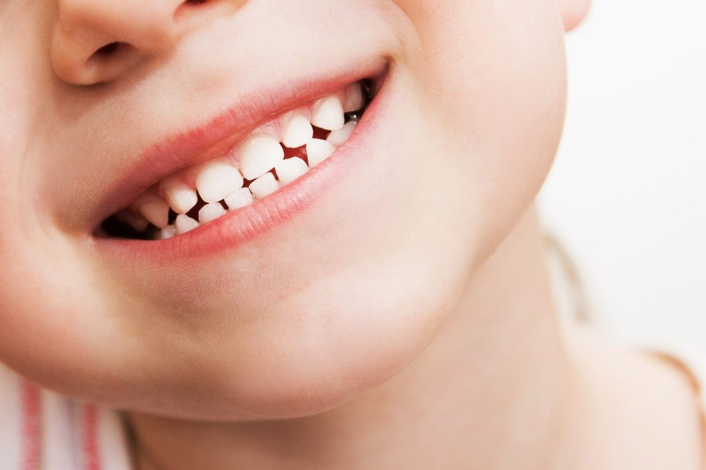 Closeup of child with baby teeth smiling
